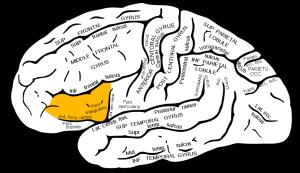 partie triangulaire du gyrus frontal inférieur