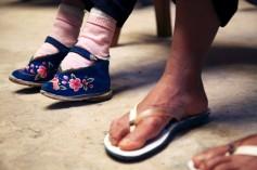 pieds_bandés