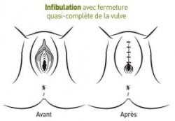 infibulation-1-300x208